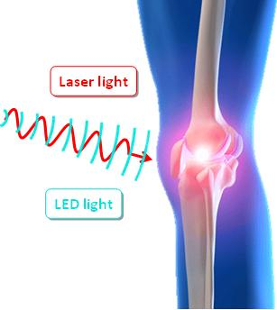 Light therapy on knee